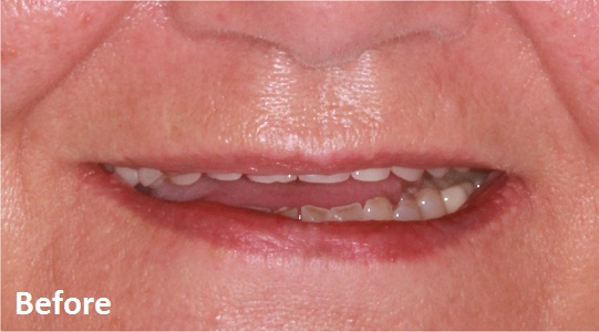 Dentures - Before